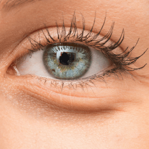 Contact Dr. Tattelbaum if you are interested in receiving under-eye fillers.