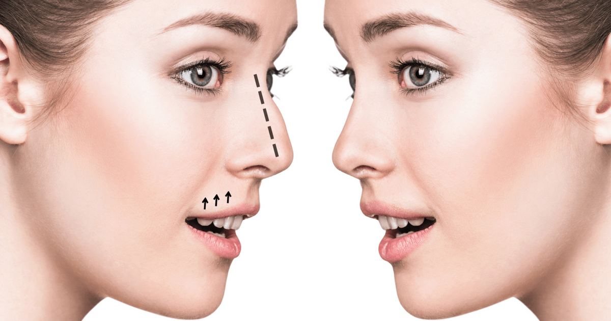 Nose Job Tips