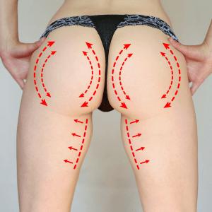 Flexible options for butt lift