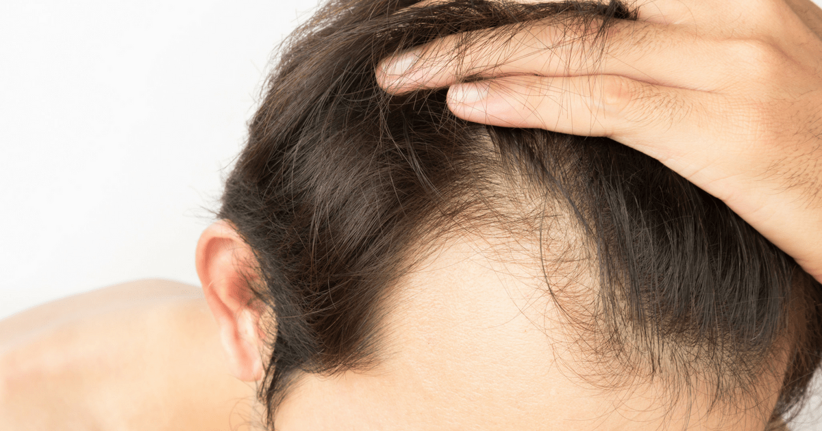 How Hair Transplants Can Change Your Life