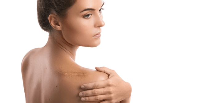Surgery Scars What You Need to Know
