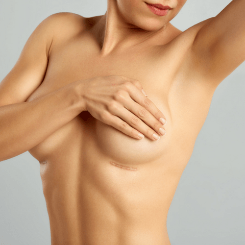 Scars after breast implant