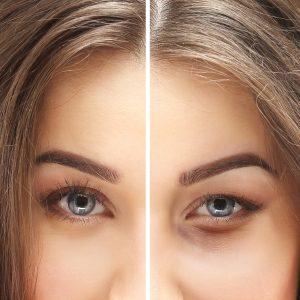 Eyelid Surgery vs Brow Lift