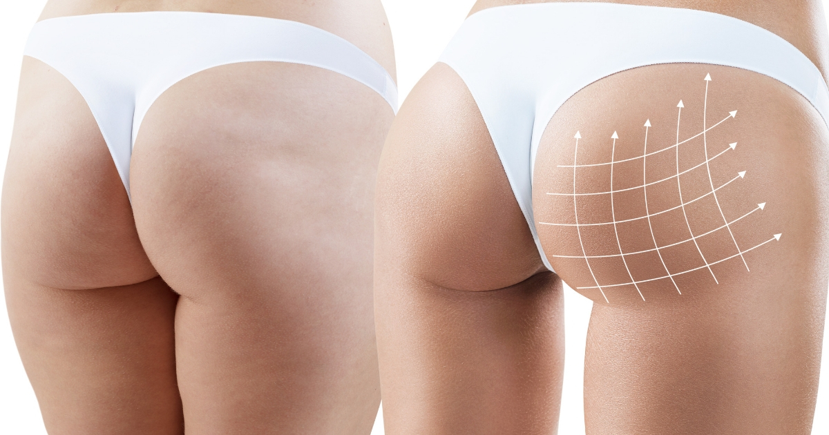 7dfec5652 Essential Pros and Cons of a Brazilian Butt Lift Surgery