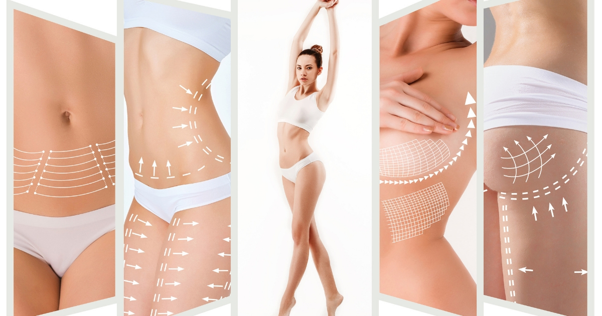 combining cosmetic surgery