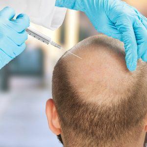 mens hair transplant