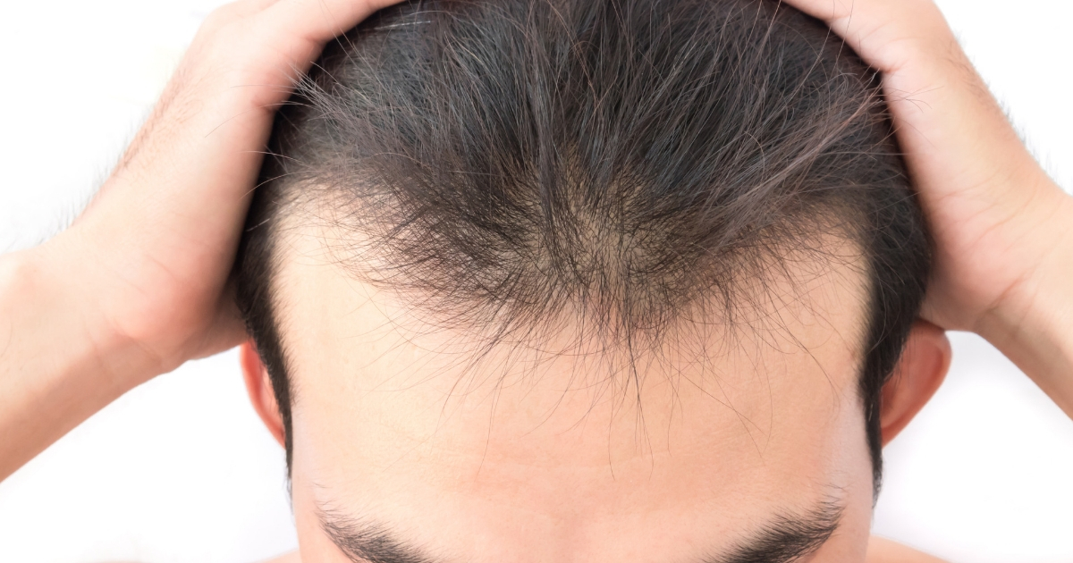hair transplants for men