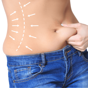 vibration supported liposuction