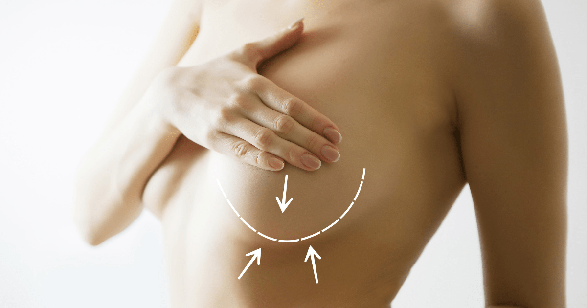 how to minimize scarring after breast reduction surgery